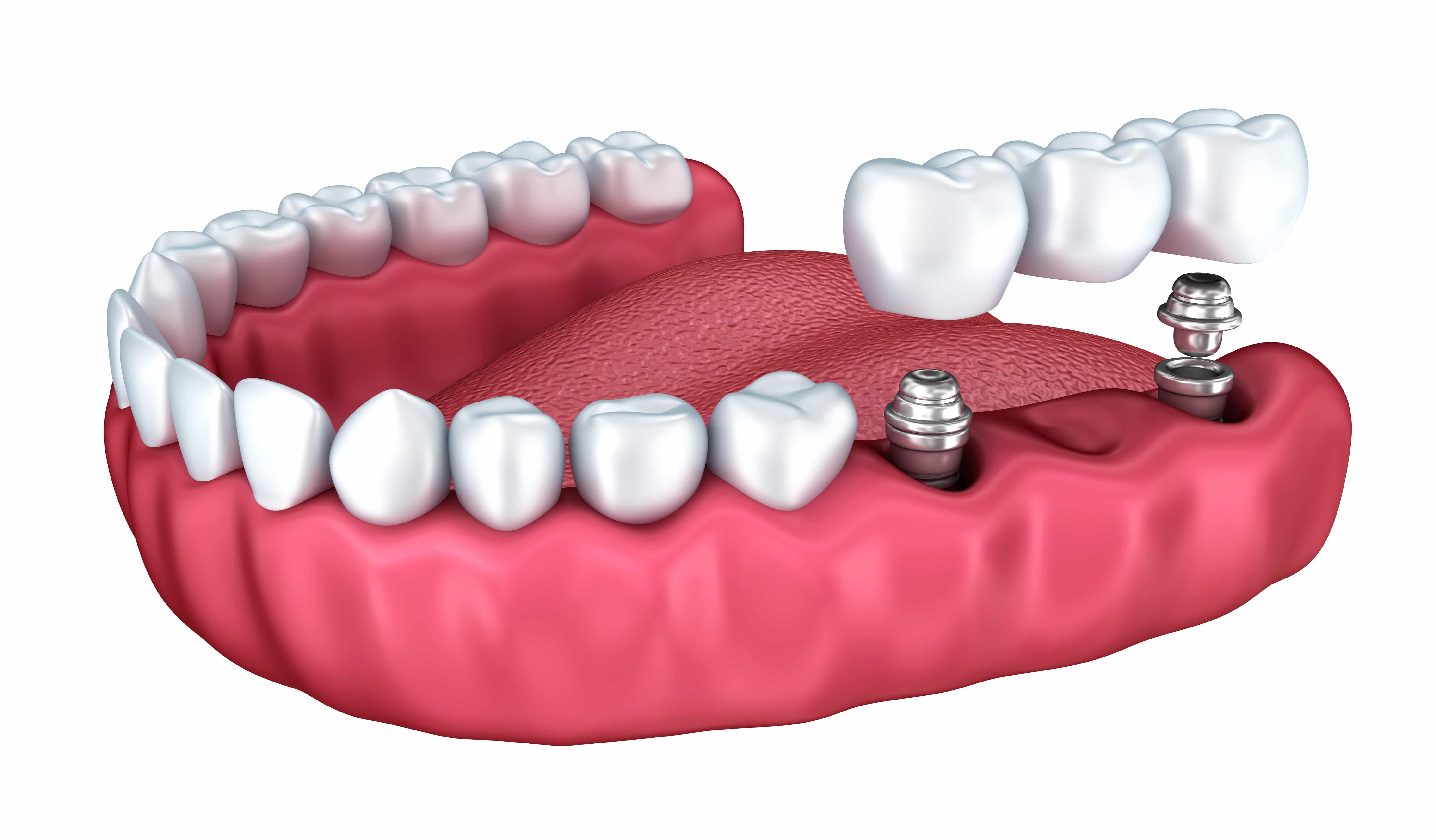 Crown Implants